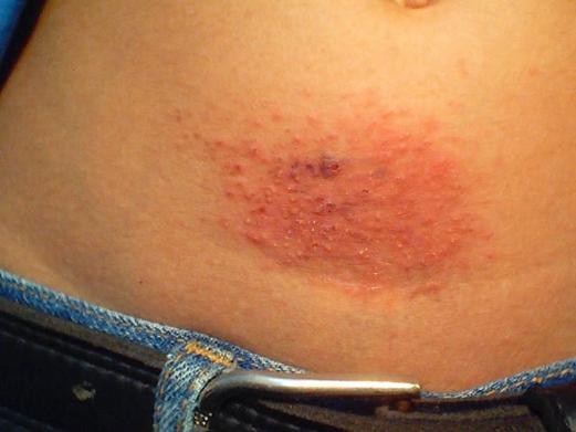 image10 Dermatite da contatto – che cos'è, sintomi, cure