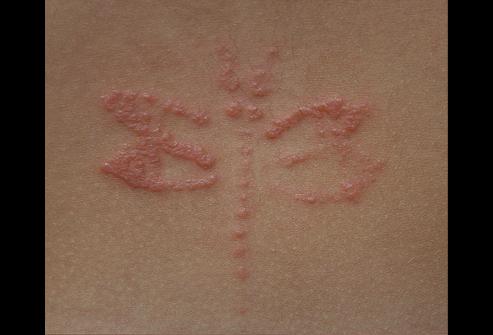 image11 Dermatite da contatto – che cos'è, sintomi, cure
