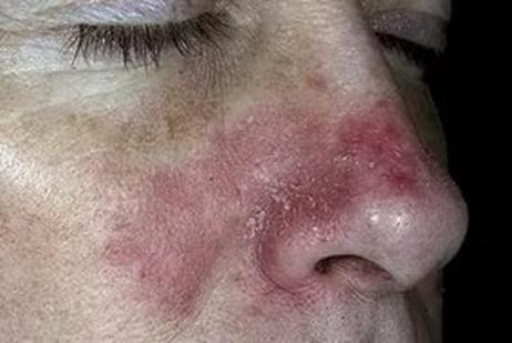 image14 Dermatite da contatto – che cos'è, sintomi, cure