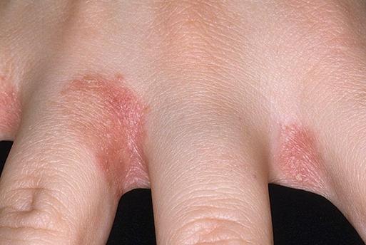 image15 Dermatite da contatto – che cos'è, sintomi, cure