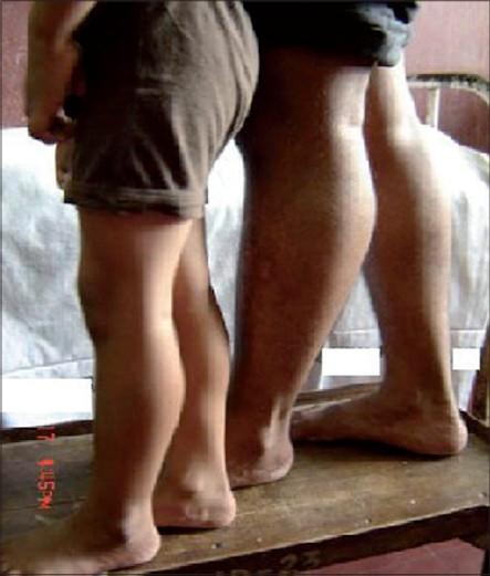 image25 Sintomi della distrofia muscolare, della distrofia di Duchenne, della distrofia di Becker