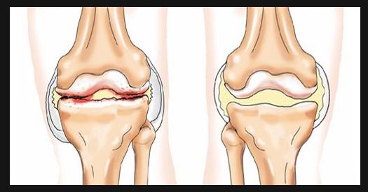 image1 Dolore al ginocchio   dolore allarticolazione del ginocchio