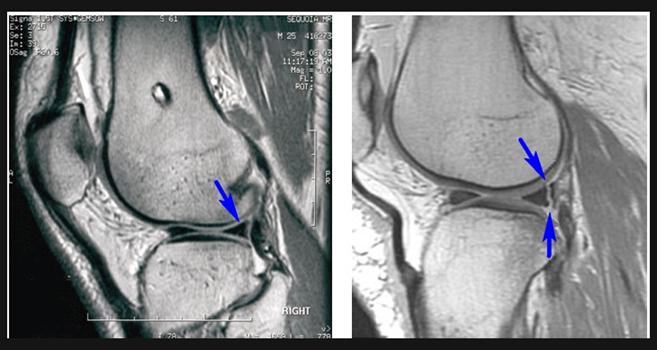 image2 Dolore al ginocchio   dolore allarticolazione del ginocchio