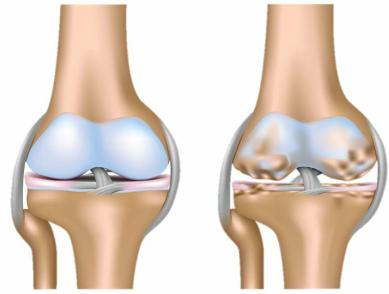 image3 Dolore al ginocchio   dolore allarticolazione del ginocchio