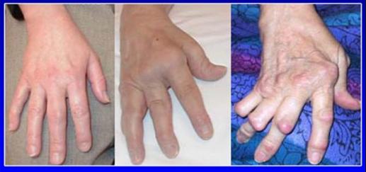 image4 Dolore al ginocchio   dolore allarticolazione del ginocchio