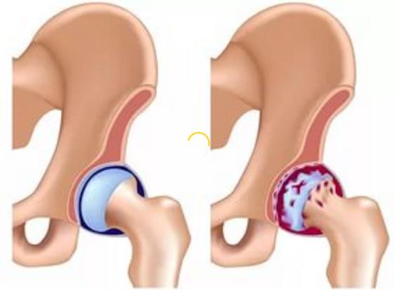 image5 Dolore al ginocchio   dolore allarticolazione del ginocchio